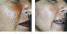 eDermastamp - ennen ja jälkeen